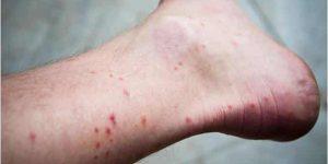 Las picaduras de pulgas son más comunes en zonas pobladas por vello