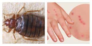 picadura-pulga